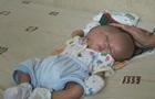 В Индонезии родился ребенок с двумя лицами