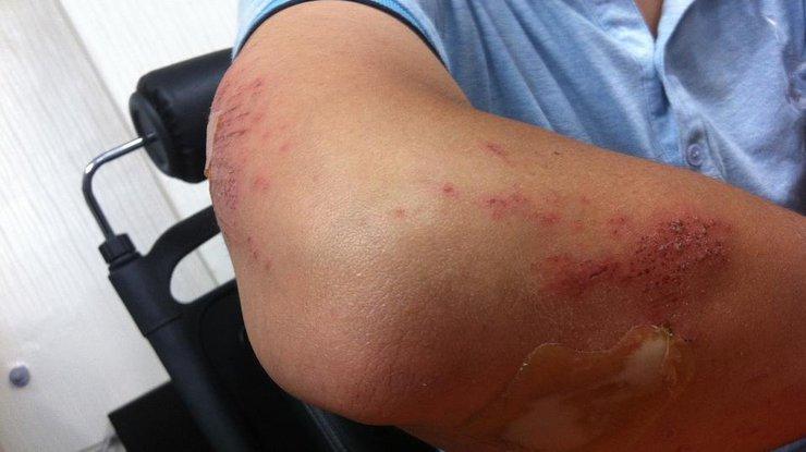 Рана заживает за полчаса: ученые создали уникальную кожу