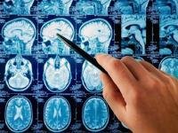 «Огромная опухоль мозга повредила слуховой, лицевой нервы мужа и чуть не погубила его самого»