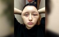 Из-за краски для волос у француженки деформировалось лицо