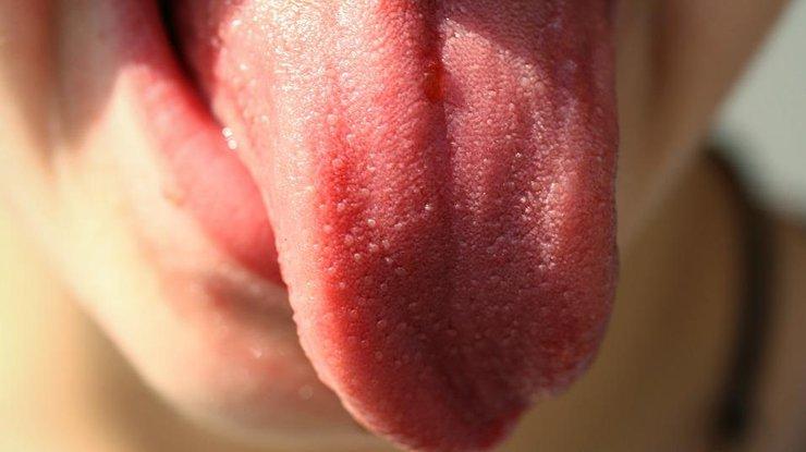 О каких проблемах со здоровьем говорит цвет языка