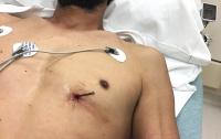 Американец приехал в больницу с гвоздем в сердце
