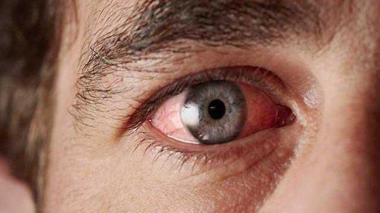 Из глаза харьковчанина достали гигантского паразита (фото)