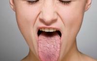 Медики рассказали, о каких болезнях говорит сухость во рту