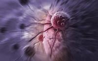 Ученые предложили лечить рак с помощью молекул-убийц