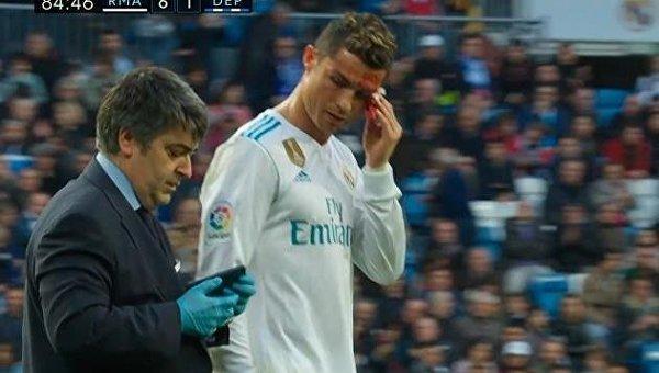Роналду разбили лицо