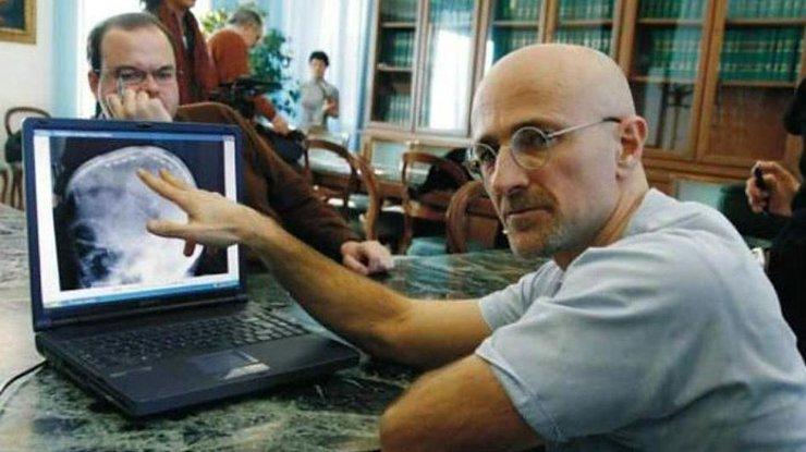 Трансплантация головы: ученые рассказали об опасностях пересадки